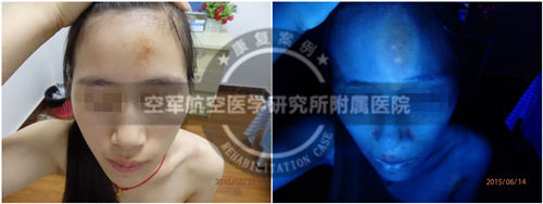 初诊时,患者额头白斑明显,在wood灯下显示色素脱失